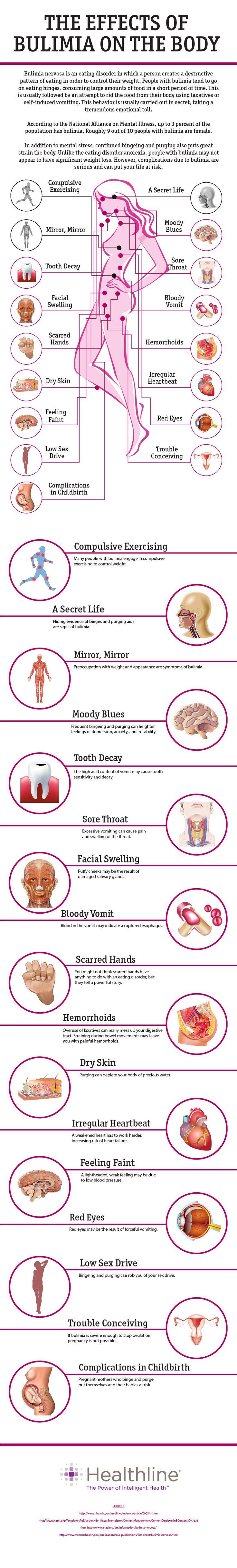 Bulimia nervosa effects